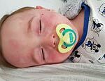 Deadly child fever is Covid: Youngsters hit by inflamed blood vessels had coronavirus, study finds