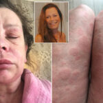UK woman says COVID-19 vaccine turned her into 'Alien' monster